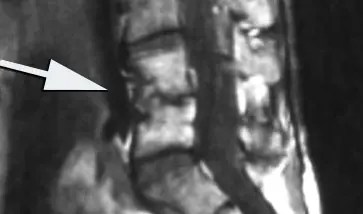 11860 Vista del Sol, Ste. 128 Discitis Infección del disco espinal que causa inflamación