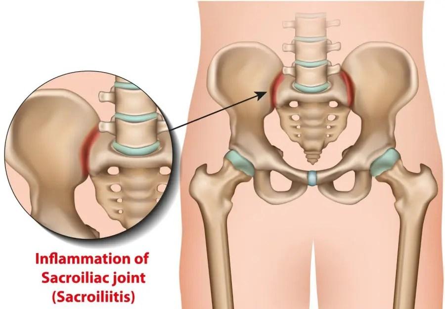 11860 Vista Del Sol, Ste. 128 When Sciatica Is Not Spine Related