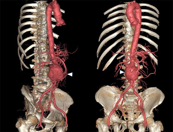 11860 Vista Del Sol, Ste. 128 Underlying Causes: Abdominal Aneurysm and Sciatica Misdiagnosis