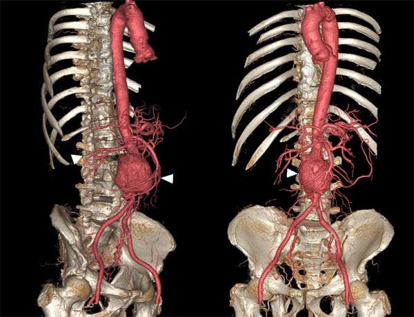 11860 Vista Del Sol, Ste. 128 Underlying Causes Of Abdominal Aortic Aneurysm and Sciatica Risks