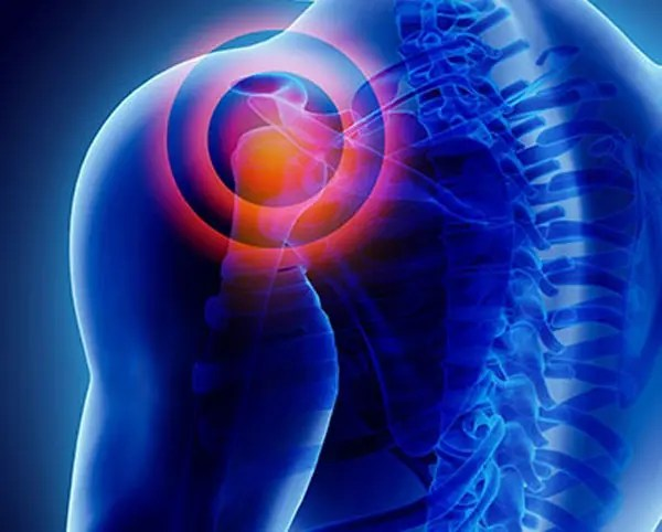 11860 Vista Del Sol, Ste. 128 Brachial Neuritis: Shoulder, Arm, Hand Pain, and Chiropractic Intervention
