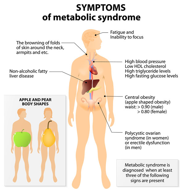 11860 Vista Del Sol, Ste. 128 Metabolic Syndrome and Chiropractic Body Wellness