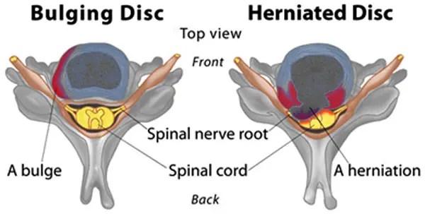 11860 Vista Del Sol, Ste. 128 Restablecimiento quiropráctico de hernia de disco espinal