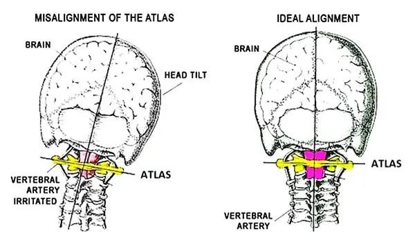 11860 Vista Del Sol, Ste. 128 La chiave della vertebra dell'Atlante per mantenere l'equilibrio e l'allineamento della testa