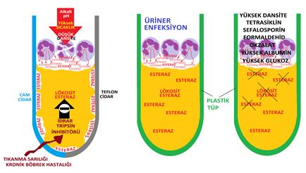 İdrarın Biyokimyasal Analizi : Lökosit Esteraz tesbiti