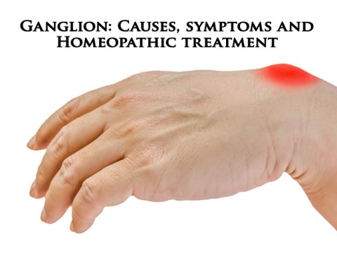 Ganglion: Causes, symptoms and Homeopathic treatment