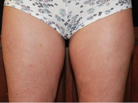 inner thigh coolsculpting after