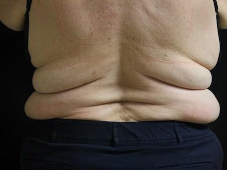 back bulge procedure