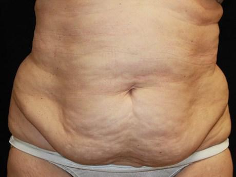 unwanted belly fat before