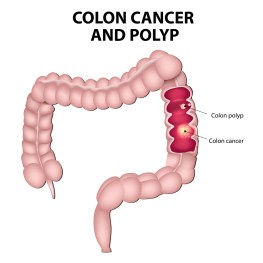 Colon cancer and colon polyps. Polypshave the potential to turn into cancer iftheyremain in the colon.