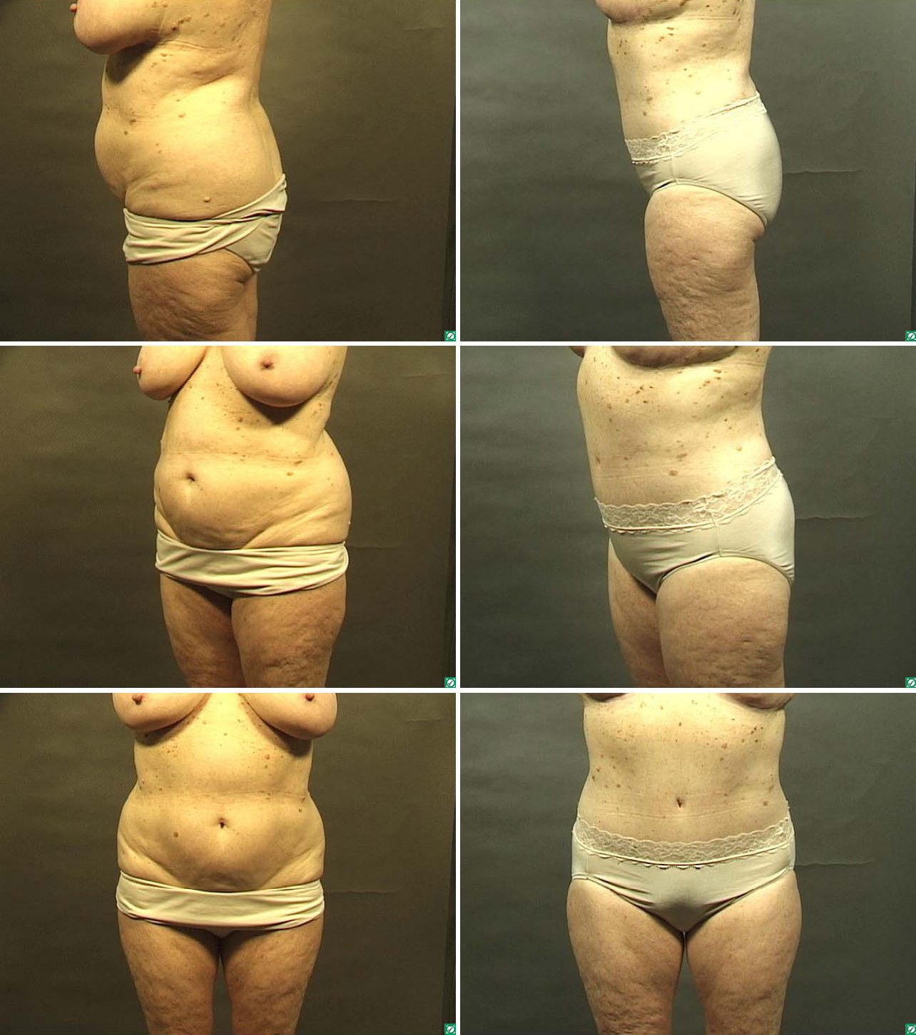 Tummy Tuck Before Amp After Photos Abdominoplasty Dallas