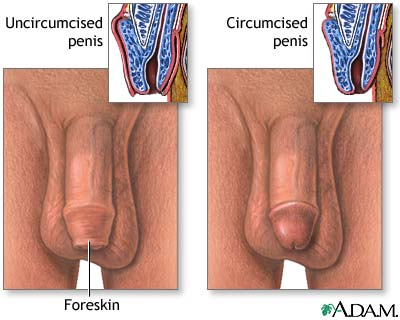 circumcised-vs-uncircumcised.jpg