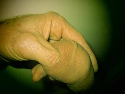 Foreskin-Stretching-2