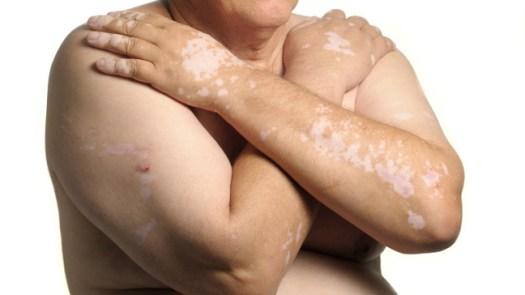 vitiligo_arms