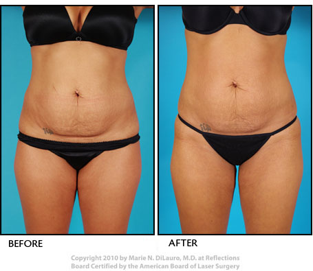 Vaser liposuction to woman's stomach