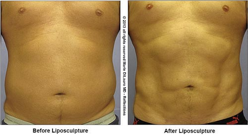 Liposuction to male abdomen for definition