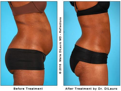 liposuction before and after side-view photos