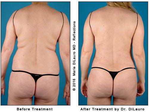 liposuction to tummy-waist and sides