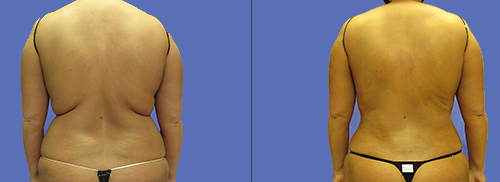 Liposuction-Fat Removal Waist Before & After