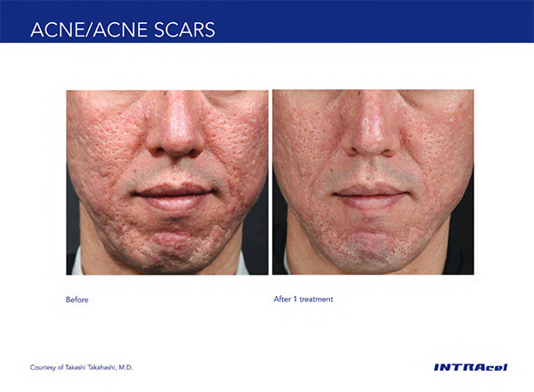 Acne Scars on face