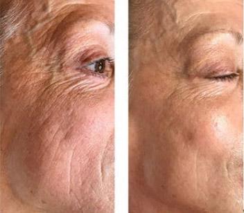 Perfect Derma Peel Treatment Photo
