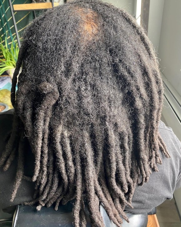 This is a before picture for a dreadlock repair appointment. The dreads are matted at the roots and have started forming together.