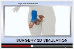 Dr Elist Surgery 3D Simulation Videos