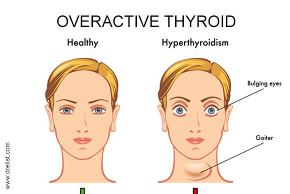 overactive thyroid, Human Body