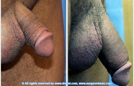 penis-enlargement-photo-8-4