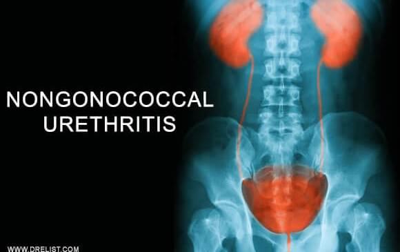 Nongonococcal Urethritis Image