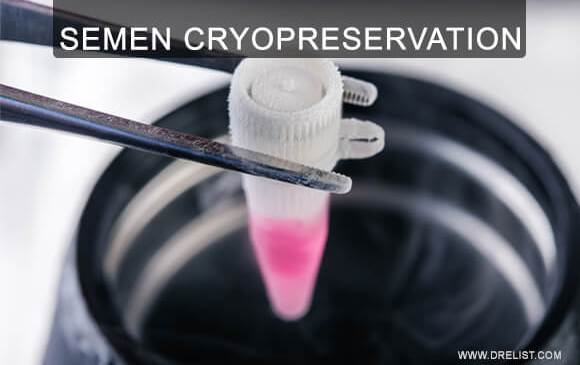 Semen Cryopreservation Image