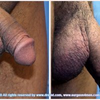 Penile Enlargement Before & After Photo Gallery