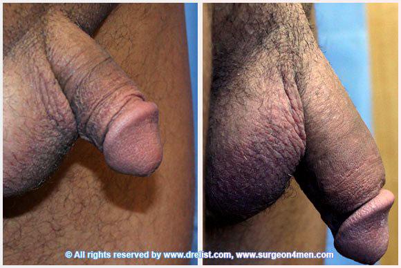Penile Enlargement Photo