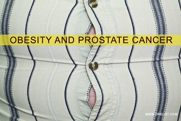 Obesity And Prostate Cancer Image