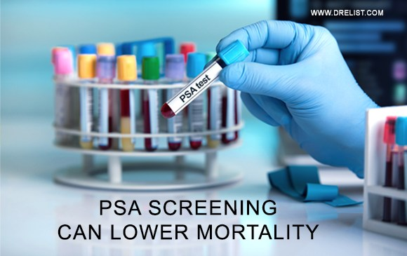 PSA Screening Can Lower Mortality Image