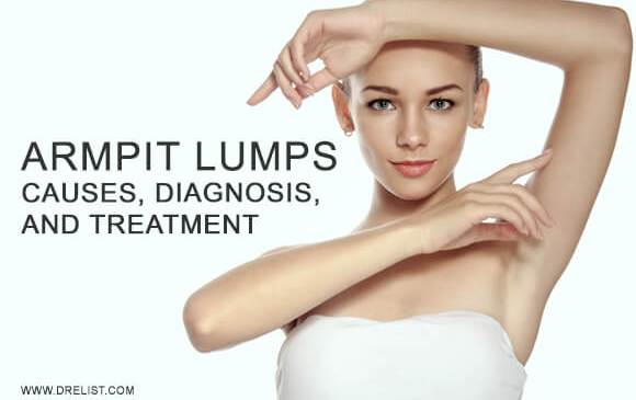 Armpit Lumps Causes, Diagnosis, And Treatment Image