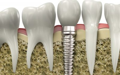 Different Types of Dental Implants​​​​​​​