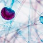 Toxinas y Endometriosis