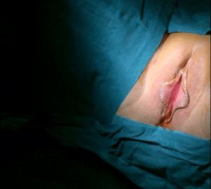Foto de cirugía de labioplastia de reducción antes