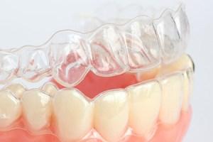 ortodonzia-invisibile-studio-rigi (1)