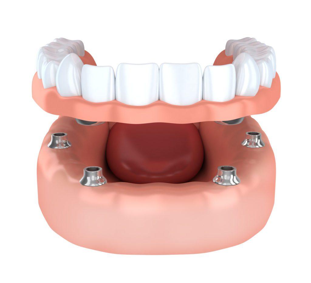 Tooth implantation, denture