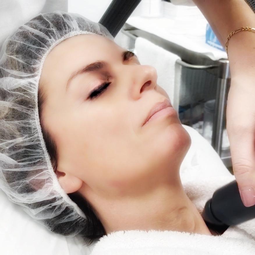 CryoAirFacial cryo gezichtsbehandeling