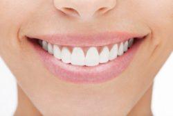 Cosmetic Dentistry, Lititz, PA