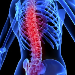 Spinal-Cord-Disease-
