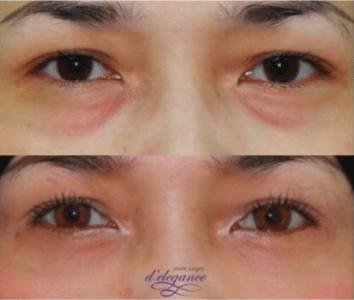 operasi plastik kantung mata