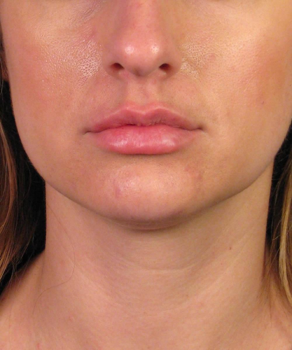 Lip Enhancement Augmentation With Juvederm