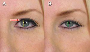 Functional Upper Eyelid Surgery in San Diego CA