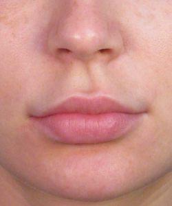 Upper Lip Lift Shortening San Diego CA