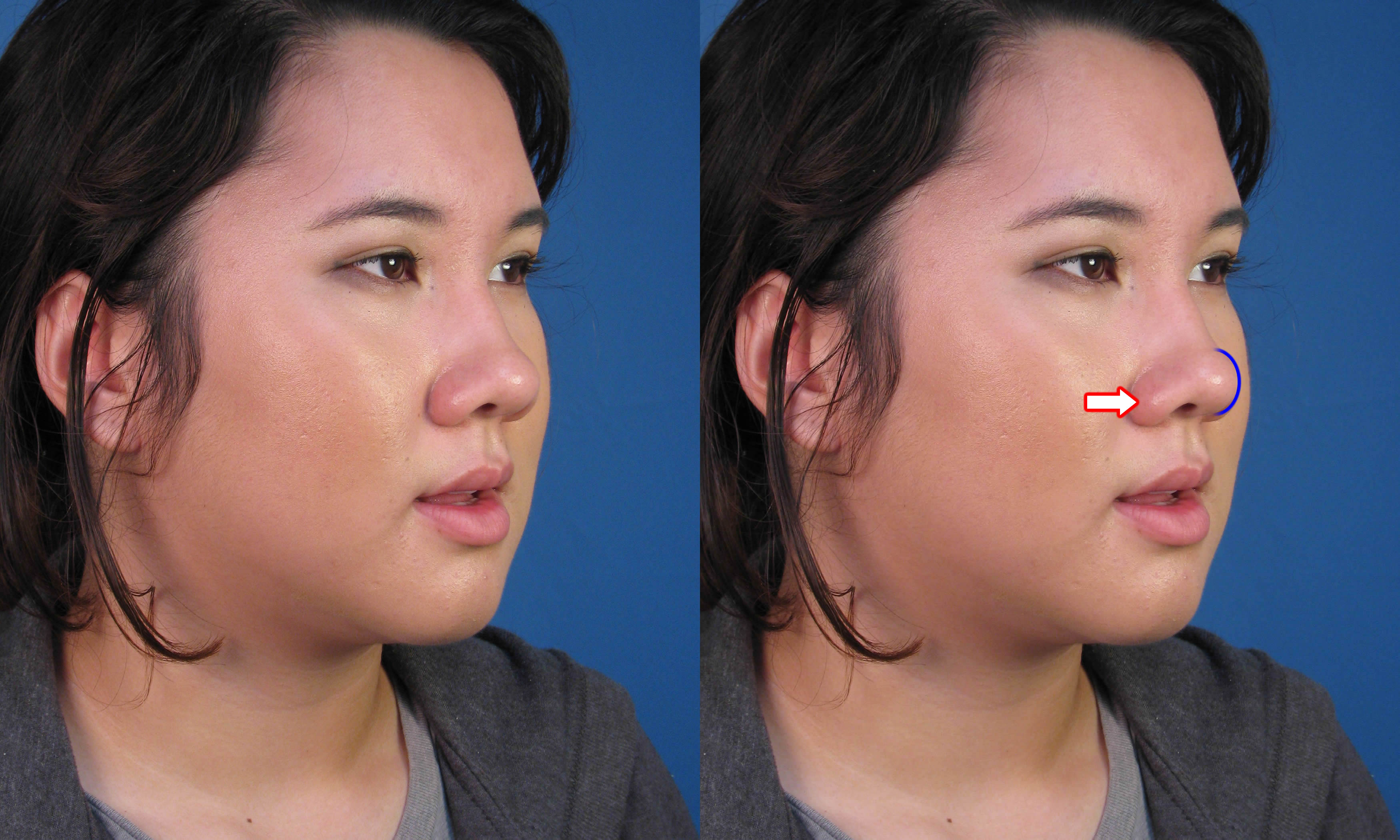 Will asian nose rhinoplasty hope