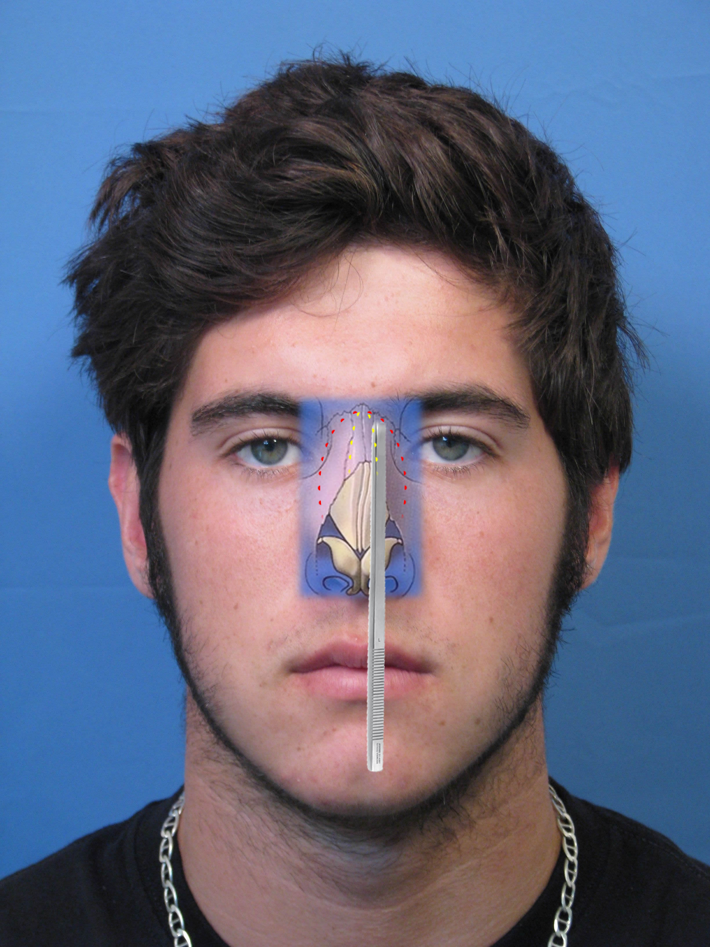 in this manner, there are no scars made on the external surface of the nose  that might become visible  rhinofracturediagramcrookedosteo